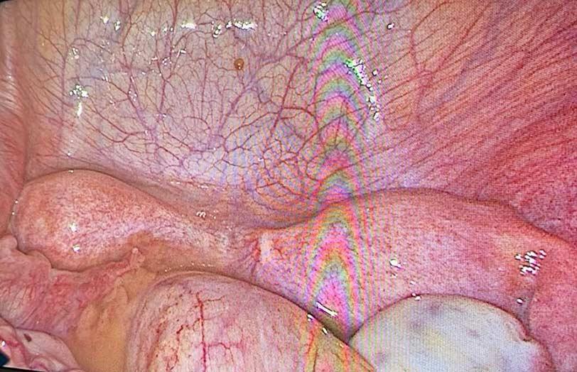 Έφηβη με εικόνα περιτονίτιδας σε έδαφος διδελφούς μήτρας με απόφραξη ημικόλπου και σύστοιχης αγενεσίας νεφρού