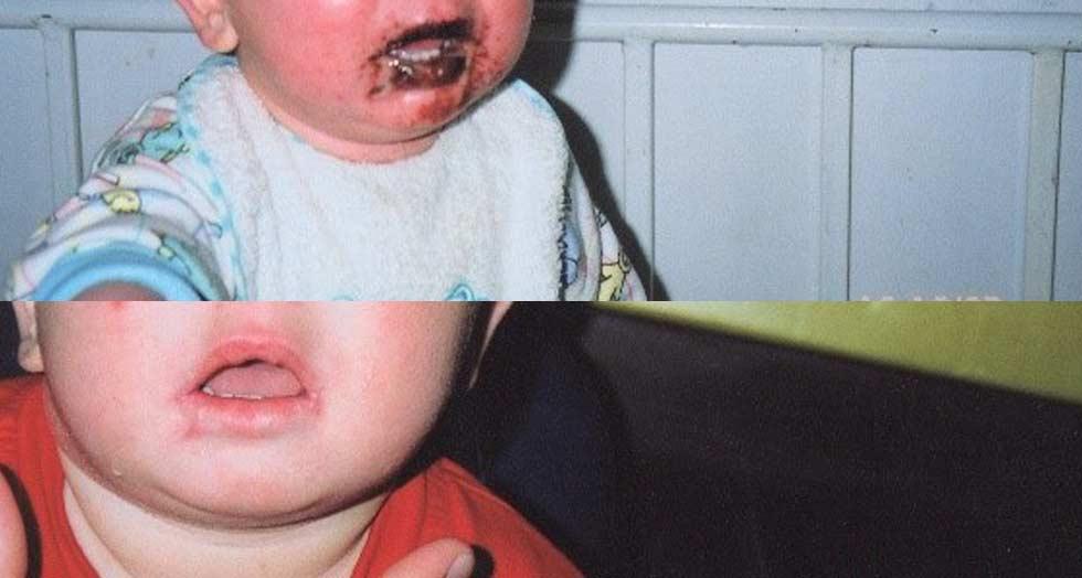 Πλαστική αποκατάσταση μετεγκαυματικής ρίκνωσης στόματος